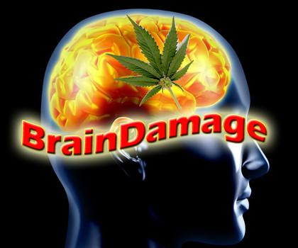 04 danni cerebrali cannabis